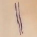 肌にボールペンで線を描いたところ
