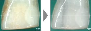 バイオアパタイトの使用で歯本来の白さへ